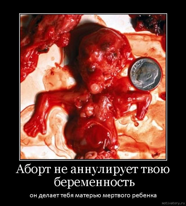 Демотиваторы о абортах