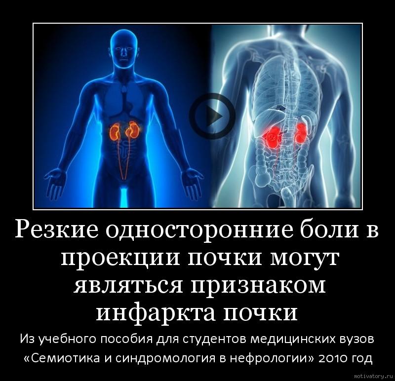 Резкие односторонние боли в проекции почки могут являться признаком инфаркта почки
